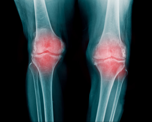 Osteoarthritis, a serious disease - OAFI Foundation